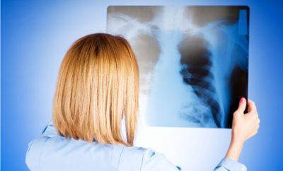 С какого возраста и как часто ребенку можно делать рентген легких, головы или животика, чем он опасен?