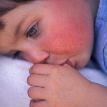 Причины покраснения кожи у ребенка по всему телу, зуд и другие сопутствующие симптомы, виды высыпаний с фото и описанием