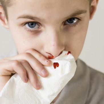 У ребенка перелом носа: по каким симптомам определить травму, как диагностировать и лечить?