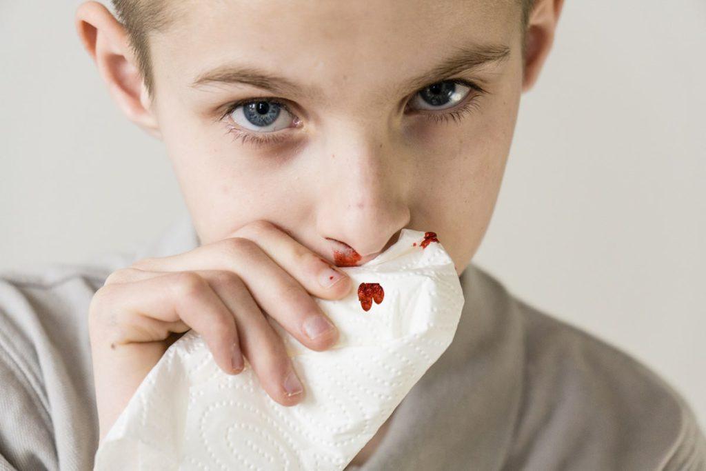Перелом носа признаки - как определить