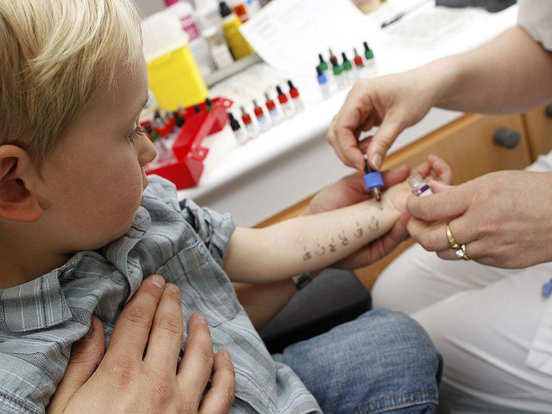 Аллергическая реакция у ребенка на Манту: симптомы и антигистаминные препараты. Симптомы и лечение поствакцинальной аллергии