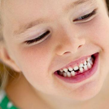 Что делать, если у детей растут кривые молочные или постоянные зубы, как их исправить?
