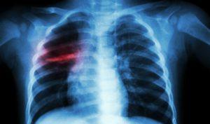 ДМПП сердца у детей: что такое дефект межпредсердной перегородки, аневризма сердца у новорожденных, нужна ли операция