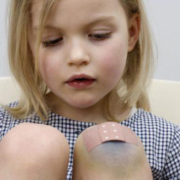 Обезболивающие мази от ушибов и синяков для детей, применение при травмах – вывихах и растяжениях, шишках от уколов