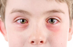 Причины возникновения красных кругов точек или пятен под глазами у ребенка
