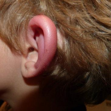 У ребенка сильно опухла мочка и покраснело ухо: почему оно чешется и горячее, какие причины аллергии и что делать?