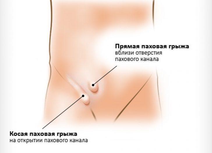 паховая грыжа у грудных детей