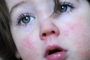 Краснуха у детей: симптомы и признаки, профилактика и лечение заболевания, фото сыпи