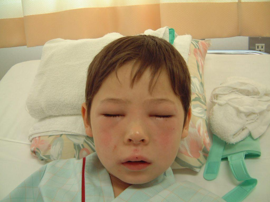 Отек квинке симптомы у детей первая помощь