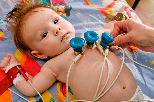 ЭКГ — как делают кардиограмму детям: особенности процедуры, нормальные показатели и расшифровка